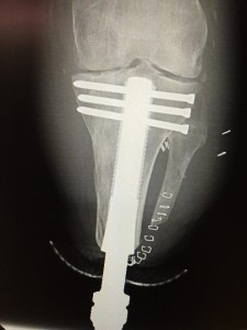 Paul Tolaini Post Op xray